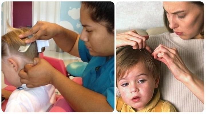 piojos y liendres en niños